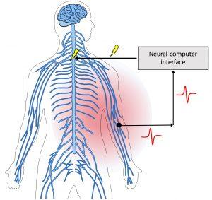 neuropahtic