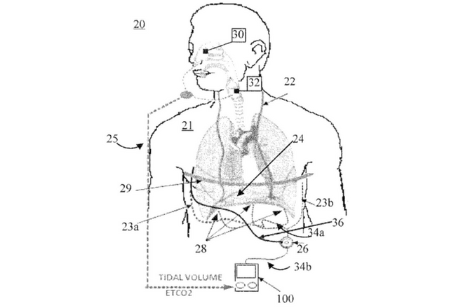 Dr. Ranu Jung Granted New Patent for Technology Promoting Adaptive Pacing of the Diaphragm