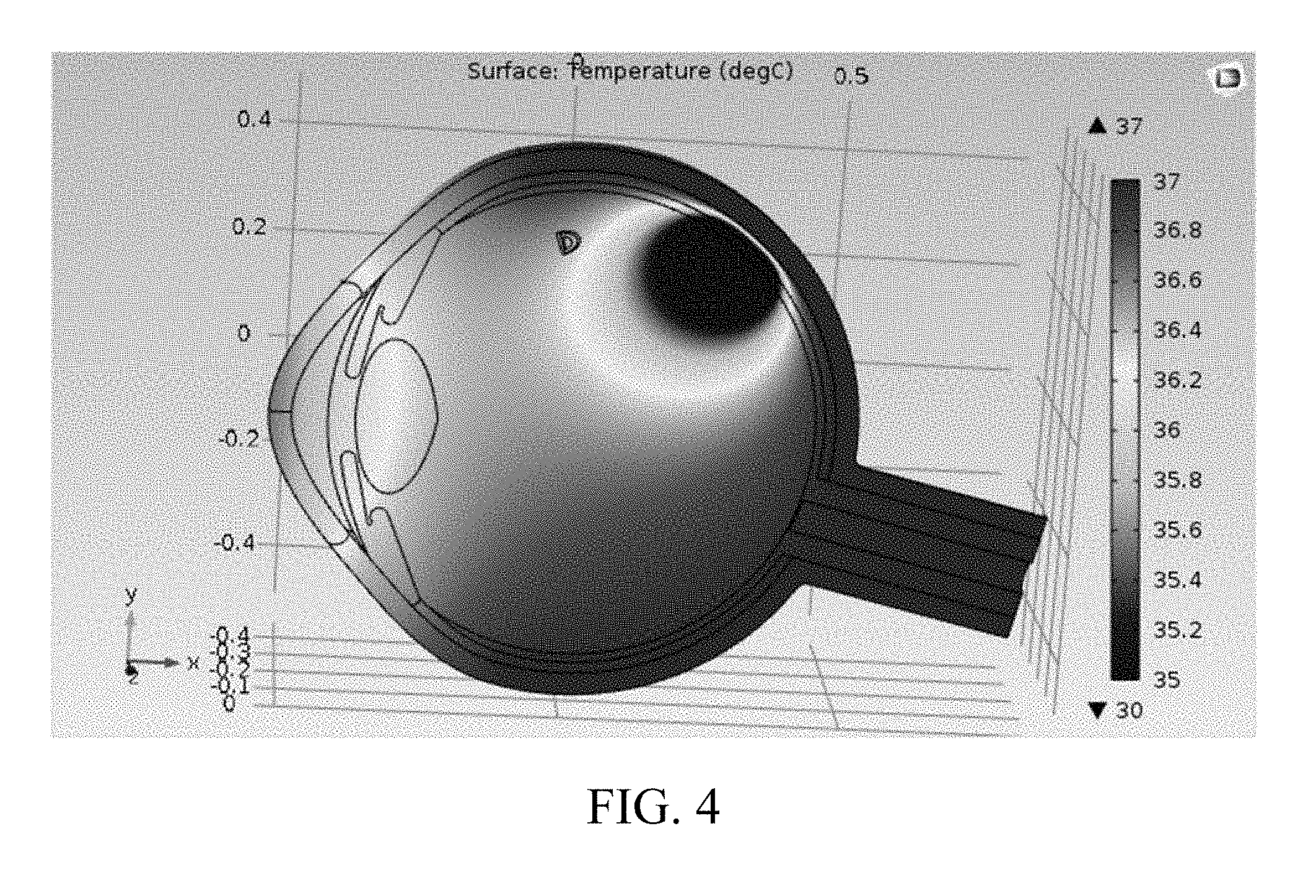 Measuring Temperature Distribution in the Eye Patent